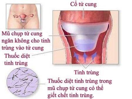 10 biện pháp tránh thai dành cho nữ: Ưu nhược điểm từng phương pháp.